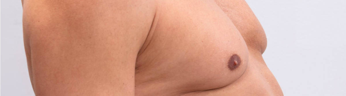 Gynækomasti Operation