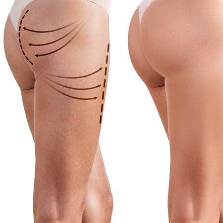 Brazilian Butt Lift Med Radiesse & Sculptra