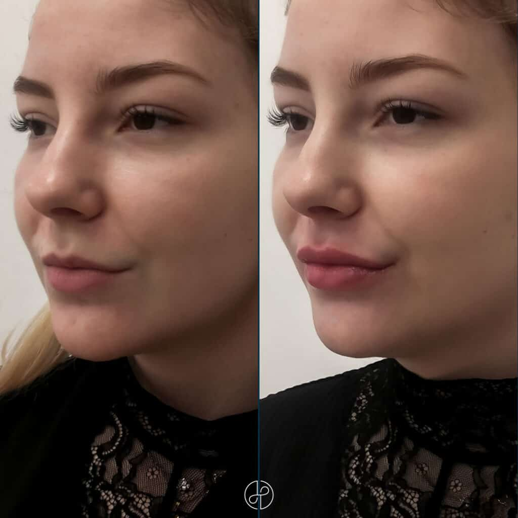 filler-lips-f-e-13-11-202