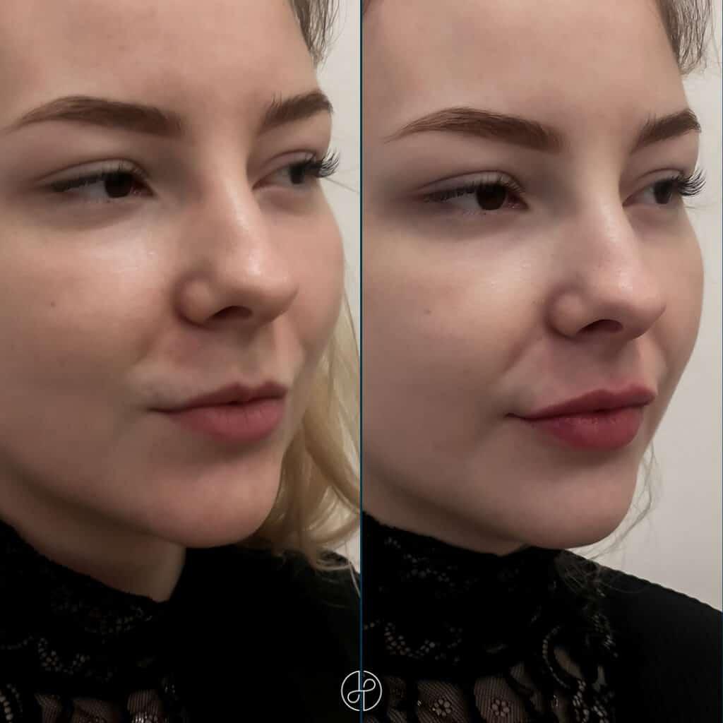 filler-lips-f-e-13-11-203
