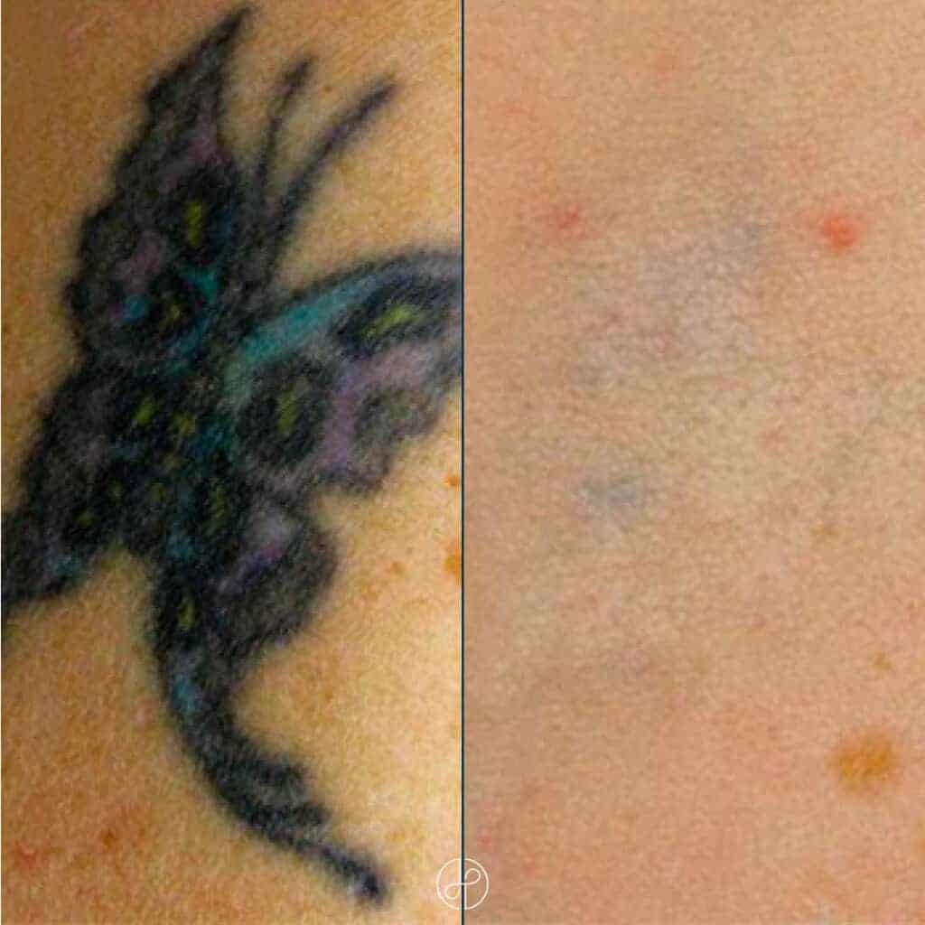 tatoveringsfjernelse-fe-0611202