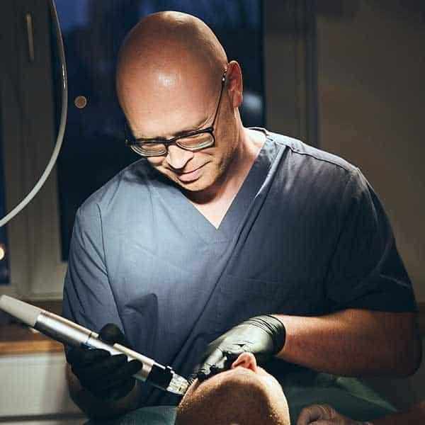acnescar treatment microneedling